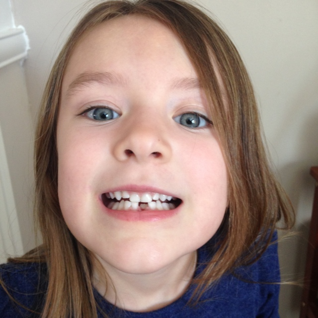 04-15-16 M first lost tooth